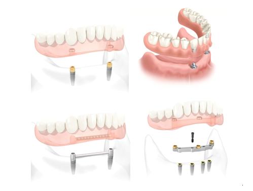 Zubne proteze sa implantima