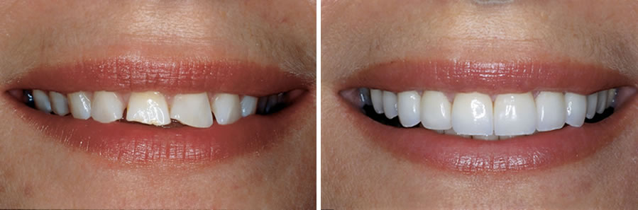 Soda za izbjeljivanje zubi